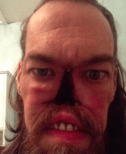 Mirip zombie gara gara kanker hidung