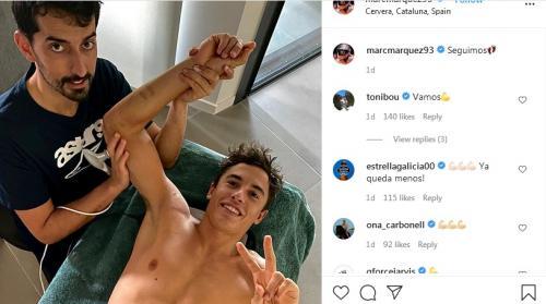 Marc Marquez menjalani fisioterapi (Foto: Instagram/@marcmarquez93)