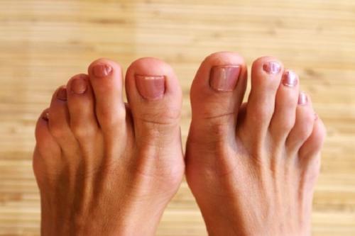 merawat kaki