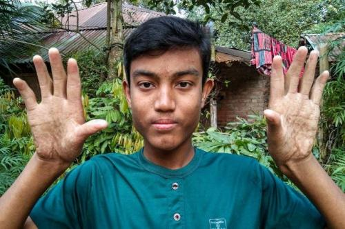 Para pria di keluarga Sarker di Bangladesh tidak mempunyai sidik jari. (Foto: Facebook Pradip Kumar Nath)