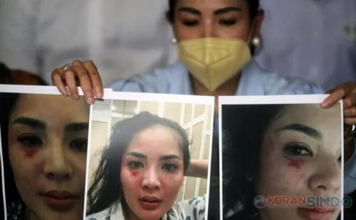 Nindy Ayunda korban KDRT. (Foto: Okezone)