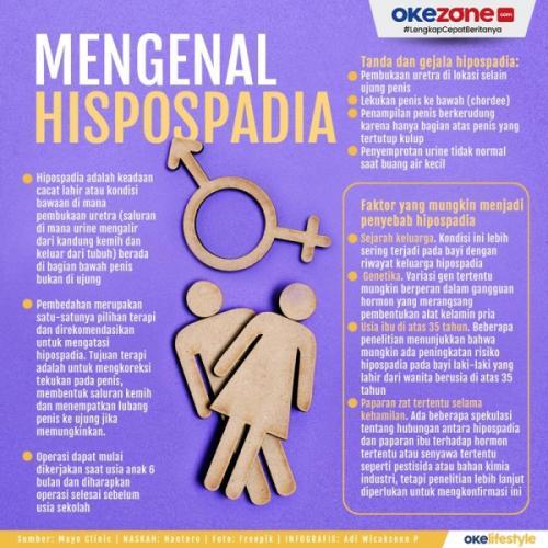 Info grafis hipospadia. (Foto: Okezone)