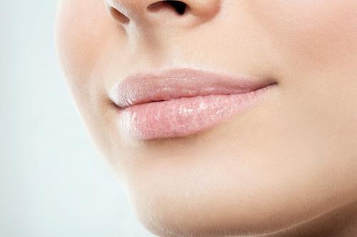 Ilustrasi bibir kering. (Foto: Shutterstock)