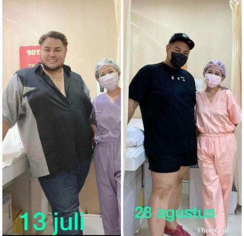 Ivan Gunawan Diet (Foto: Instagram)