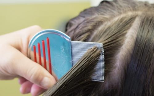 10 Cara Menghilangkan Kutu Rambut