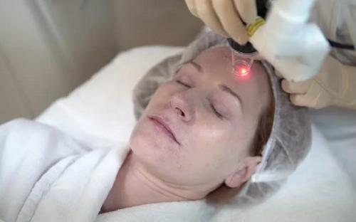 teknologi laser