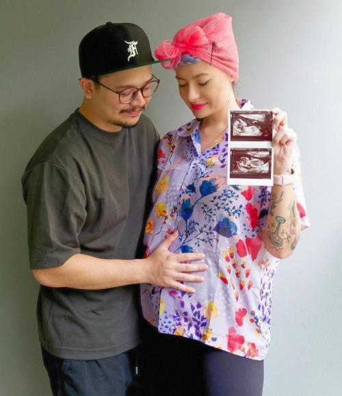 Derby Romero umumkan kehamilan istri. (Foto: Instagram/@derbyromero)
